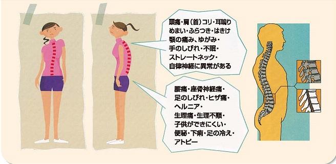 2-sakabe-uraチラシこんな姿勢ではないですか?.jpg